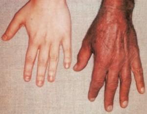 Причины гемохроматоза печени