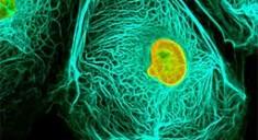 Гепатоцеллюлярный рак